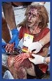 Bloody victim of World Trade  Center attack